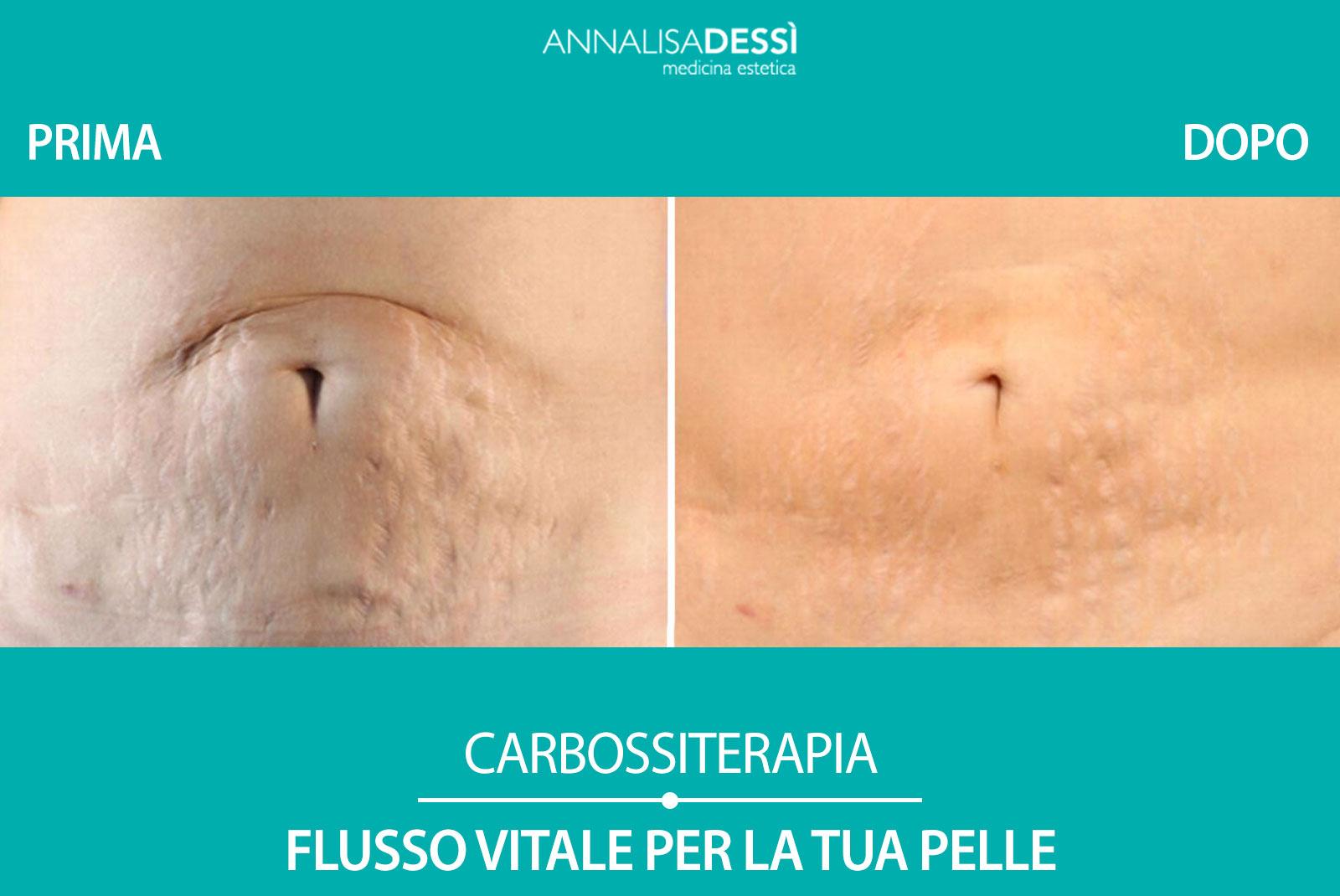 Carbossi